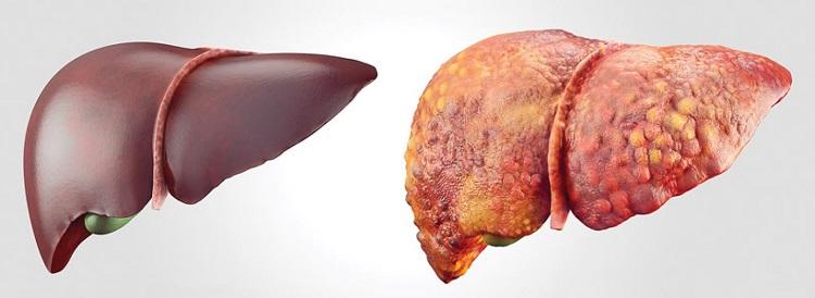 A diferença entre o fígado normal (esquerda) e um com cirrose (direita) é a modificação do tecido hepático