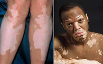 O vitiligo é uma doença não contagiosa que pode atingir pessoas de qualquer idade, sexo ou raça.