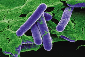 Os bacilos causadores do botulismo.