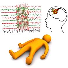O AVC caracteriza-se por uma interrupção no fluxo sanguíneo do cérebro