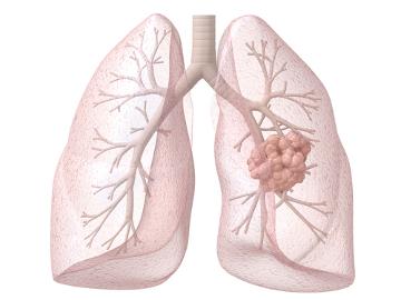 O câncer de pulmão é altamente letal, sendo assim, fique atento aos sintomas