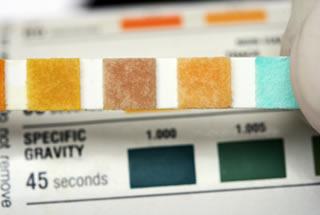 Médico segurando uma tira de teste de análise de urina e a gravidade específica do lado da ferramenta de diagnóstico