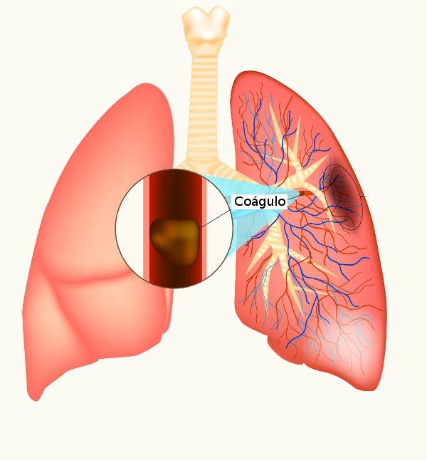 A embolia pulmonar é causada pela obstrução da artéria pulmonar ou de seus ramos.