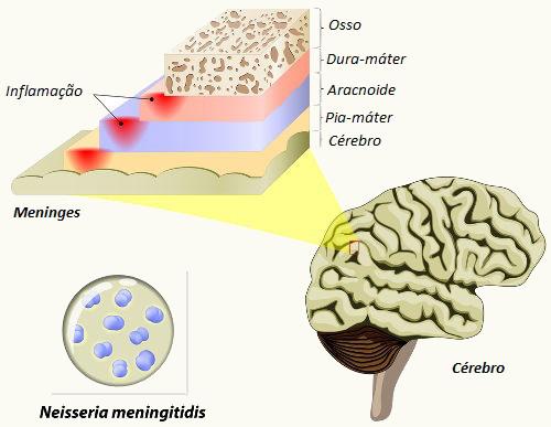 As meninges são as membranas que revestem o sistema nervoso central. Sua inflamação recebe o nome de meningite