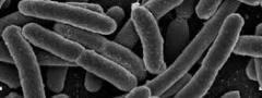Escherichia coli: bactéria responsável por problemas gástricos e intestinais.