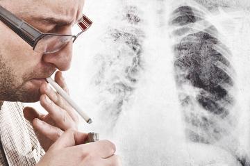O cigarro é responsável por 90% das mortes por câncer de pulmão