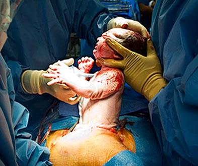 Retirada do bebê da barriga da mãe em um parto cesárea