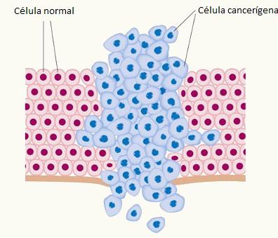 O câncer caracteriza-se pela multiplicação de células de maneira descontrolada